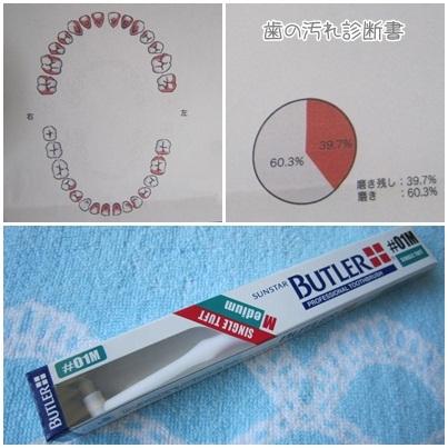 20111029 歯医者(ブラッシング指導)